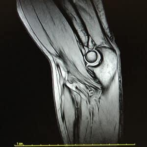 Immagine di RMN Ginocchio eseguito presso X-Ray Ultrasound