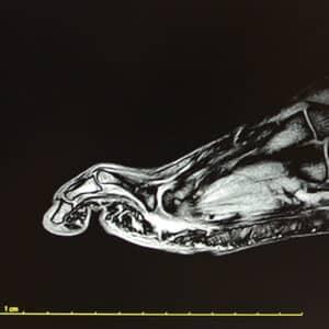 Immagine di RMN Piede eseguito presso X-Ray Ultrasound