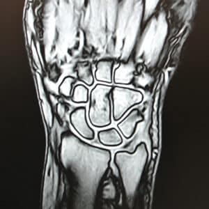 Immagine di RMN Polso/Mano eseguito presso X-Ray Ultrasound