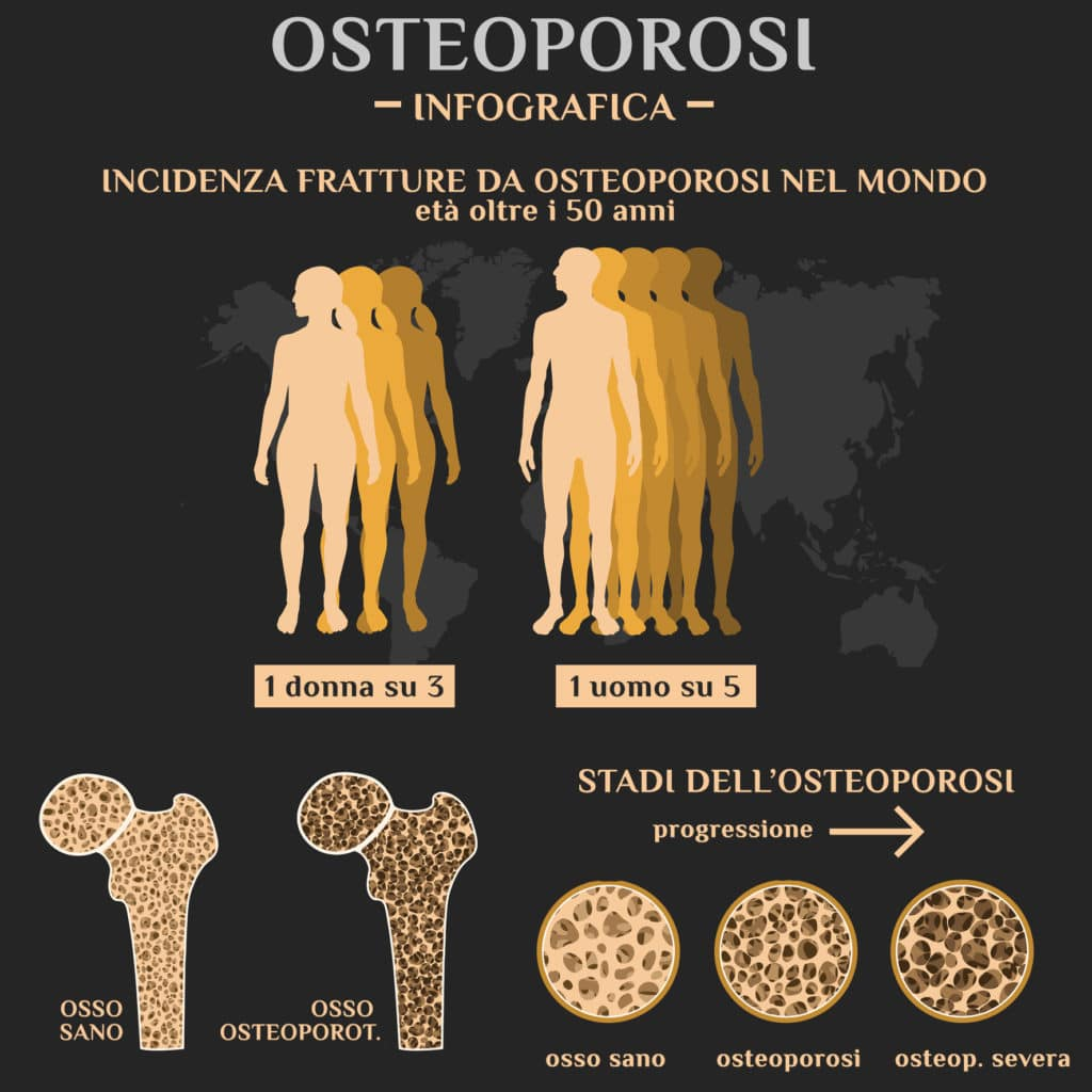 Nostro articolo Gazzetta del Mezzogiorno su Osteoporosi